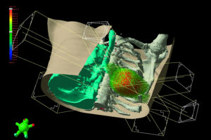 Varian_Eclipse software--lung cancer treatment planning