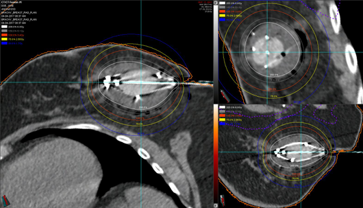 image of breast brachytherapy using a double-balloon applicator